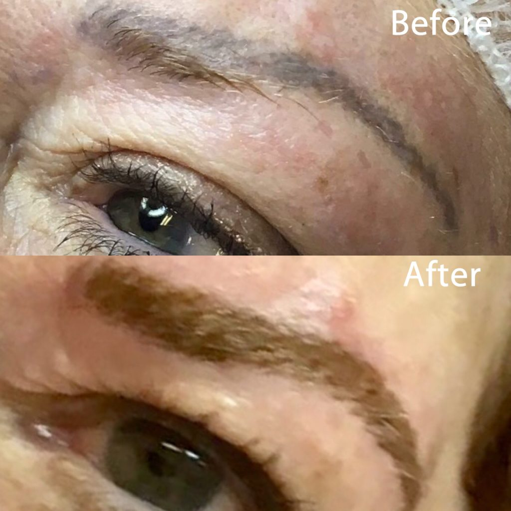 Tattooed eyebrows turned blue. Varvara corrected shape and color.
