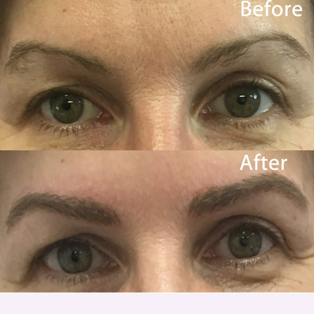 Client had damage in the middle of the brows that left them looking bare. Varvara completed the shape and matched brow color to perfection